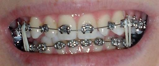 Gumki Wyciagi Ortodontyczne 1 8 3 18mm Medium 6982771471 Allegro Pl